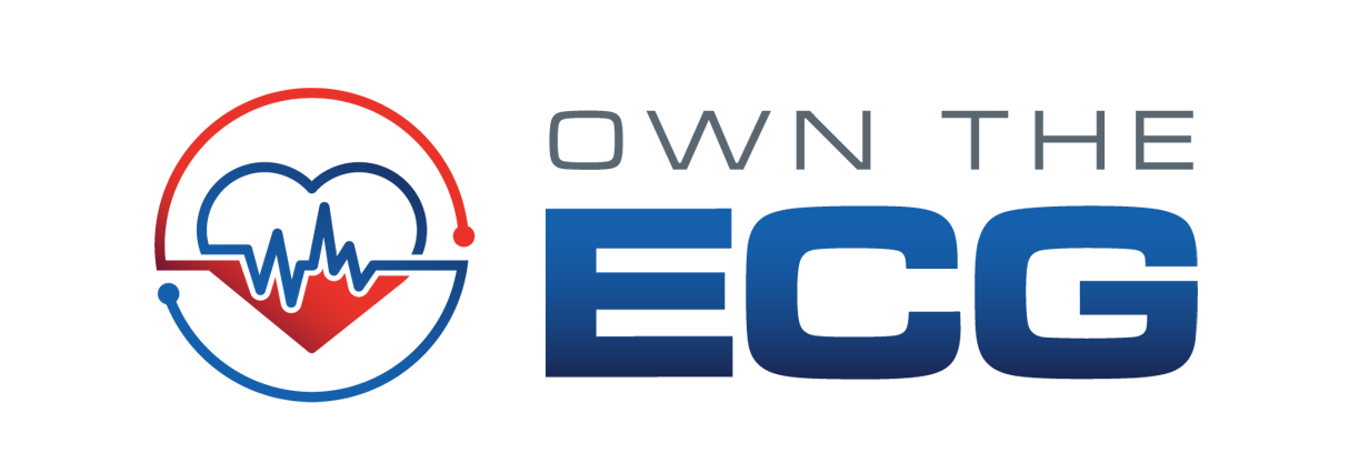 Own The ECG